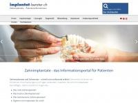 implantat-berater.ch